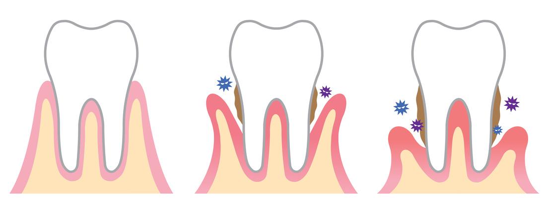 Stadien einer Parodontitis